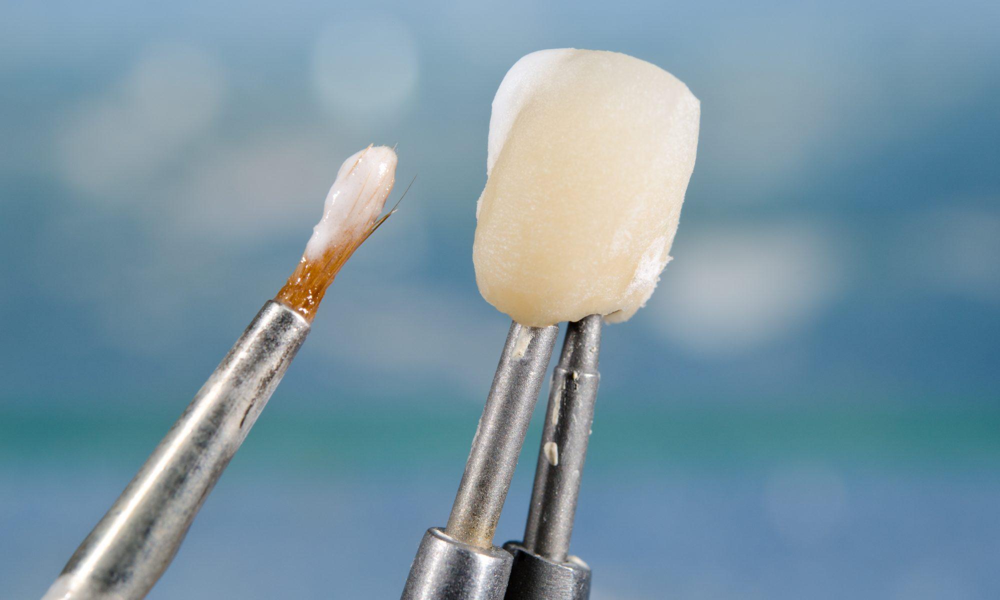 Ästhetische Krone auf Zahnimplantat