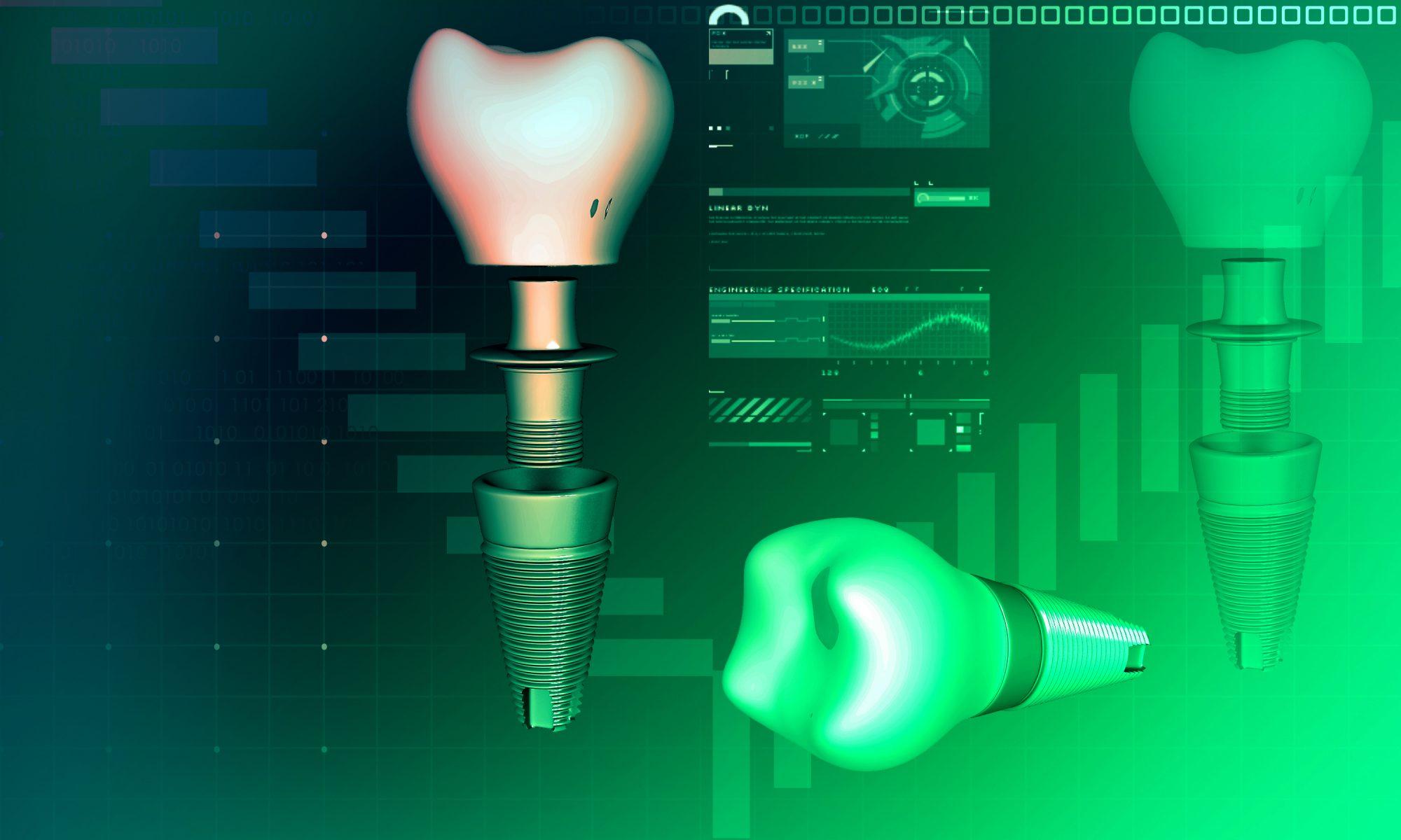 Implantat-Kronen: präzise und schön