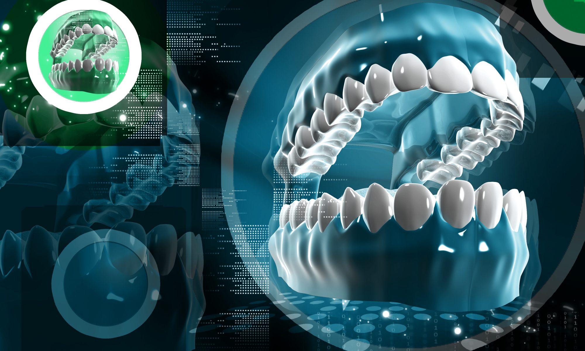 Fhoch2: Dental HighTech für Implantate und Zähne in Hofgeismar und Kassel
